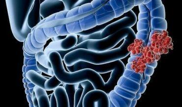 Oncología y Radioterapia, Diagnóstico de Cáncer de Colon y Recto