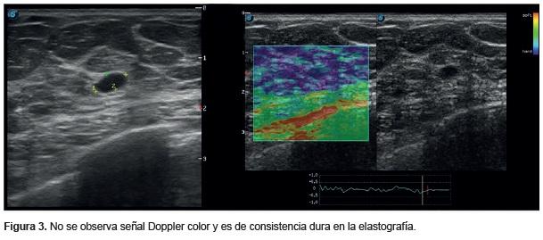 Carcinoma de células claras renales, Elastografía