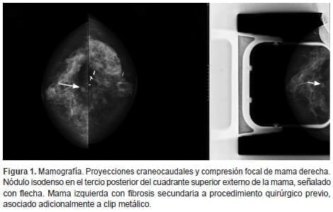 Carcinoma de células claras renales, Proyecciones craneocaudales