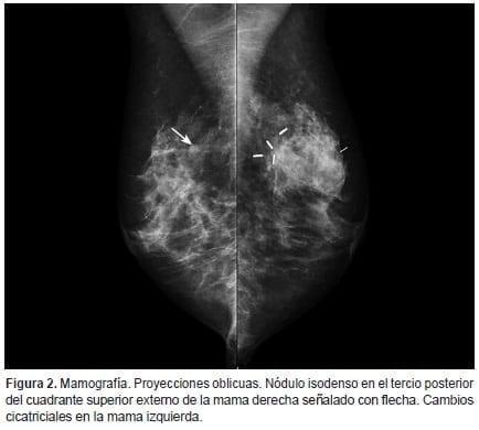 Carcinoma de células claras renales, Proyecciones oblicuas