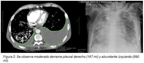 Derrame Pleural Derecho (167 ml)
