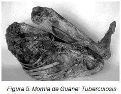 Momia de Guane: Tuberculosis