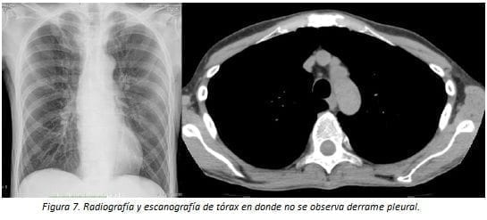 Derrame Pleural Radiografía y Escanografía de Tórax