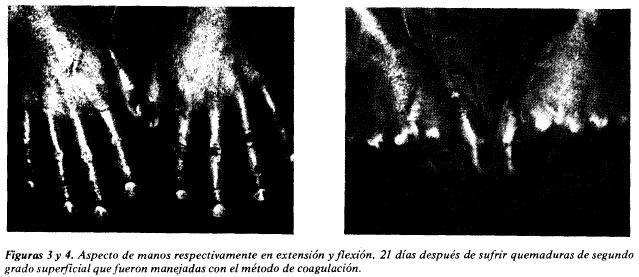 Aspecto de manos respectivamente en extensión y flexión