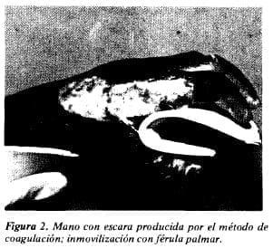 Mano con escara producida por el método de coagulación