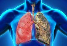 Enfermedad pulmonar obstructiva crónica (EPOC)