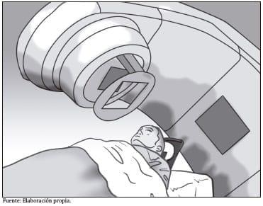 Equipo de radioterapia