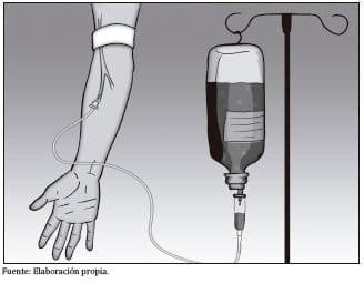 Aplicación de quimioterapia intravenosa
