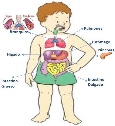Fibrosis Quistica, Glosario Visual