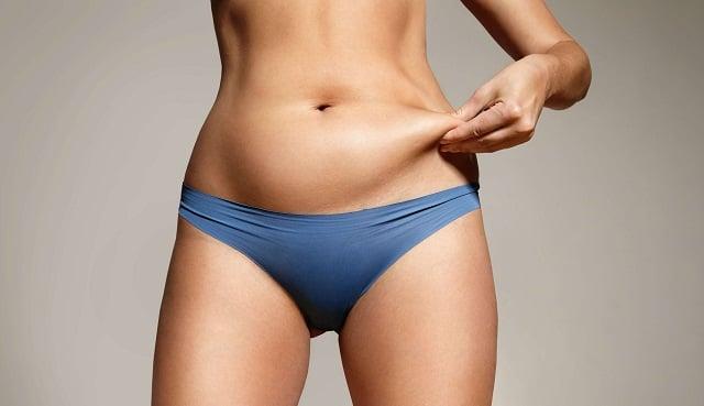 Flacidez en el abdomen