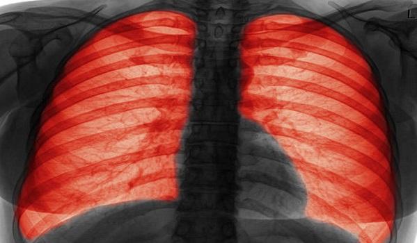 Señales de alerta a nivel pulmonar, Fibrosis Quística