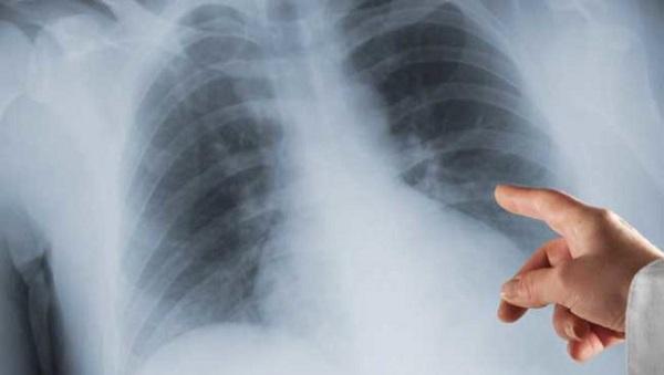Manejar la enfermedad hepática en Fibrosis Quística