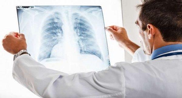 Fibrosis Quística, Puntajes clínicos y radiológicos