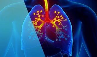 Diagnóstico de la Fibrosis Quística