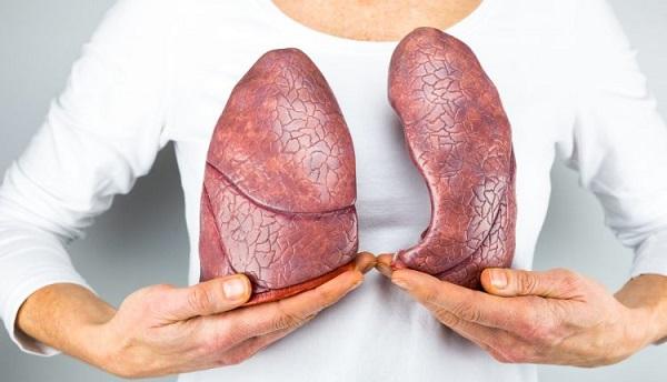 Guía para fibrosis quistica, Diagnóstico