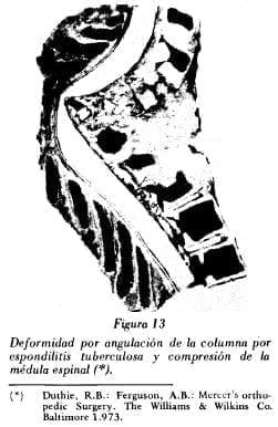 Deformidad por angulación de la columna