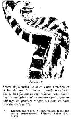 Deformidad de la columna vertebral