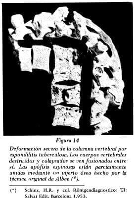 Deformación de la columna vertebral