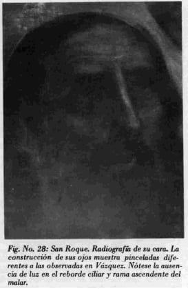 San Roque. Radiografia de su cara