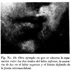 Separación entre los dos óvalos del labio inferior