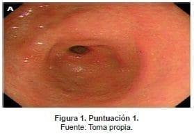 Evaluación de cuatro sitios distintos del estómago
