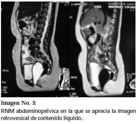 RNM abdominopélvica