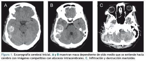 Escanografía cerebral inicial