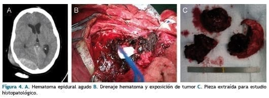 Hematoma epidural agudo