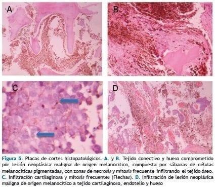 Placas de cortes histopatológicos