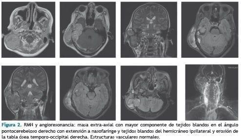 RMN y angioresonancia