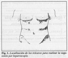 Localización de los trócares para realizar la vagotomíapor laparoscopia