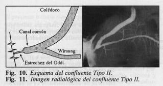 Esquema de patología del confluente biliopancreatico