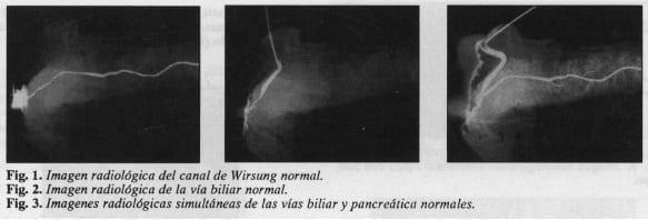 Canal de Wirsung normal, vías biliar y pancreática normales