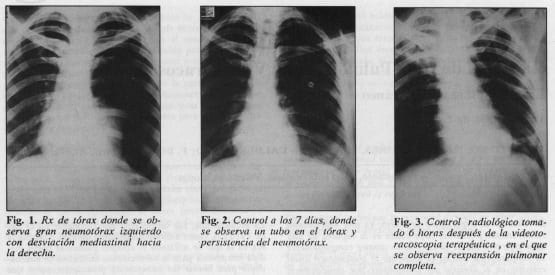 Ligadura de Bula Pulmonar