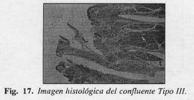 Patología del confluente biliopancreatico