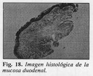 Mucosa duodenal