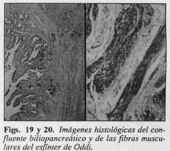 Fibras muscularesdel esfínter de Oddi