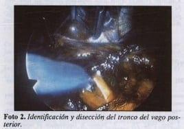 Identificación y disección del tronco del vago