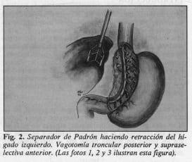 Vagotomía troncular posterior