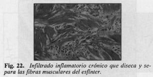 Fibras musculares del esfínter