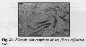 Fibrosis con remplazo de las fibras esfinterianas