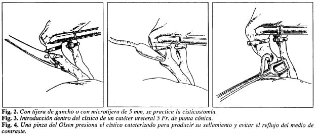 Colangiografia Laparoscopica