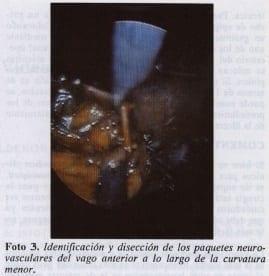 Disección de los paquetes neurovascularesdel vago
