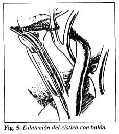 Dilatación del cístico con balón