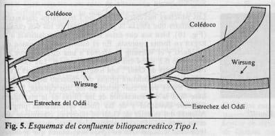 Esquema confluente biliopancreático Tipo l