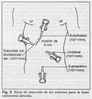 Inserción de los trócares para la hemicolectomíaderecha