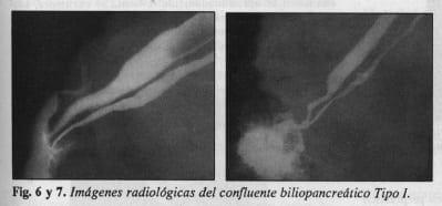 Confluente biliopancreático Tipo l