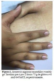 Acantosis nigricans en nudillos y ombligo