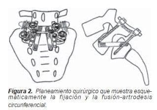 Fusión-artrodesiscircunferencial