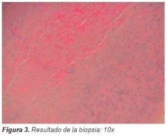 Resultado de la biopsia